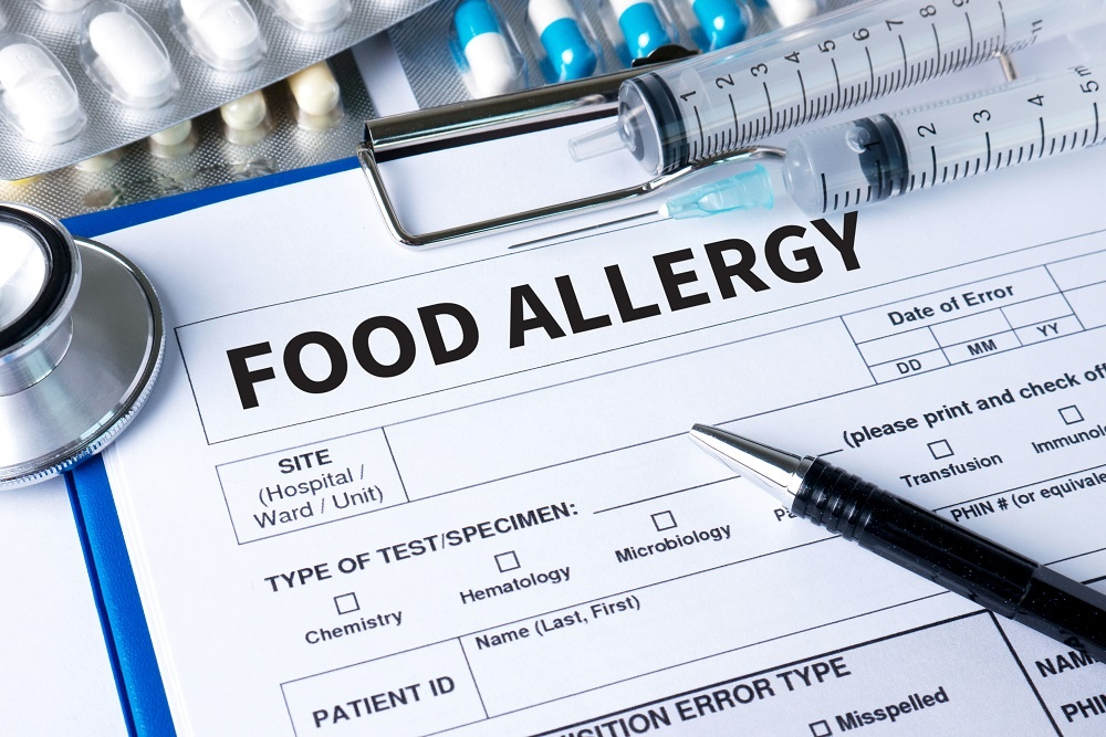 Food Allergy Test Chart
