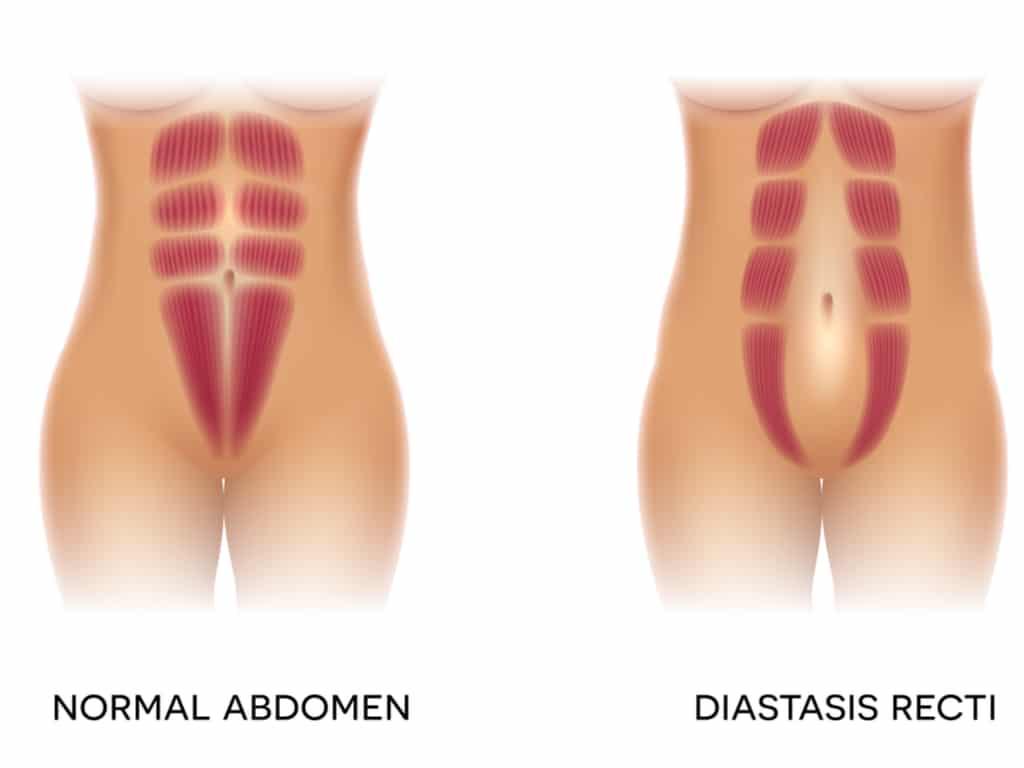 Illustration of diastasis recti