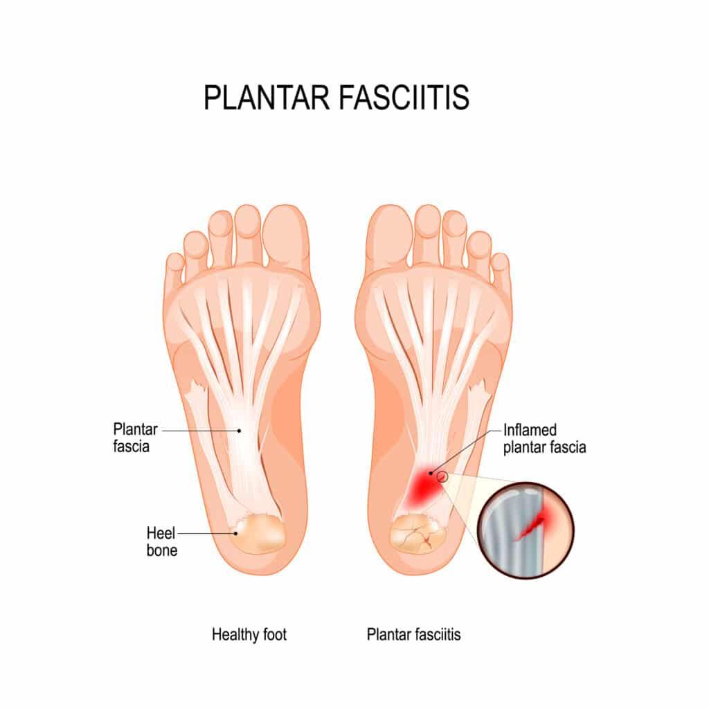 Illustration of healthy foot versus foot with plantar fasciitis
